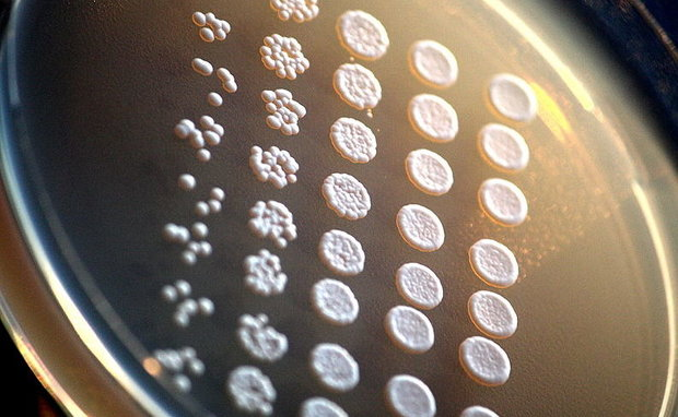 Yeast cells grow into colonies in a Petri dish.